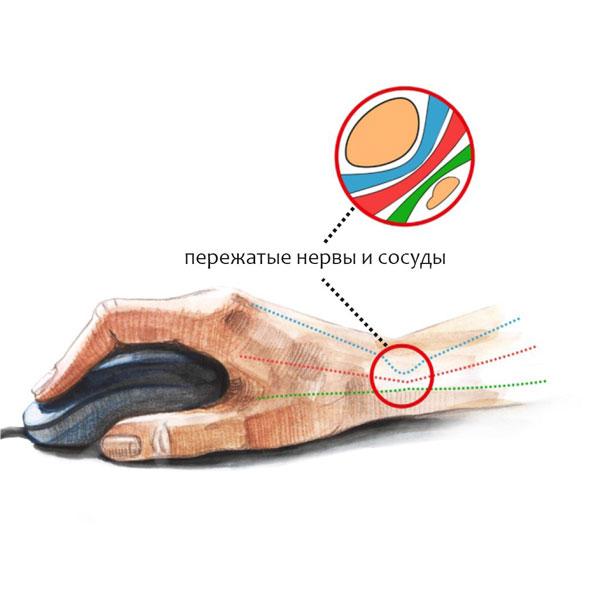a könyökízület neuritisének kezelésére