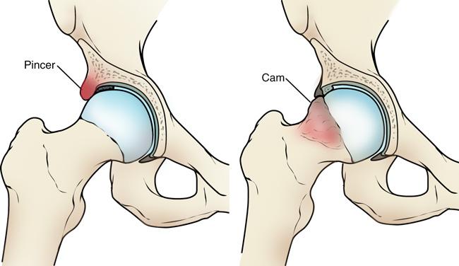a térd artrózisáról szól