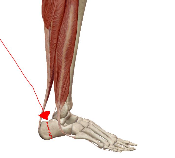 repedések ízületei a lábakon, mint kezelni)