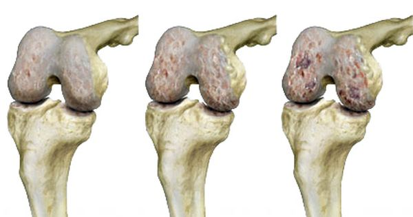a térdfájdalom rohamai a lábízületek reggel fájnak