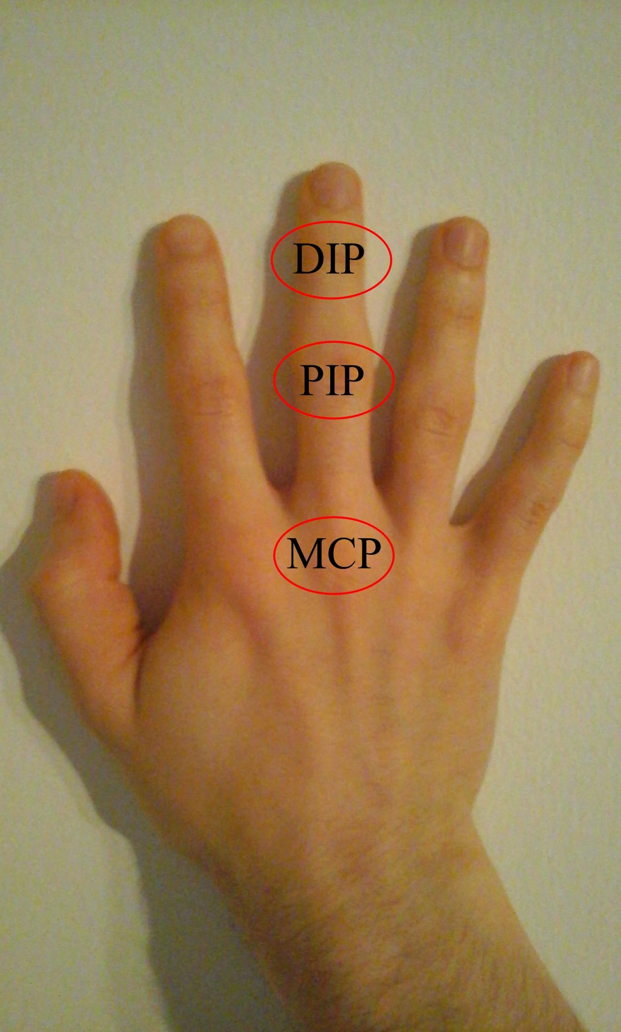 a középső ujj ízületi gyulladása