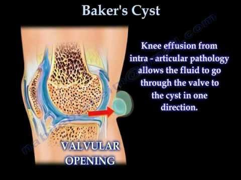 A bal könyökízület bursitisz kezelése, Synovitis: típusok, tünetek, kezelés - Könyök July
