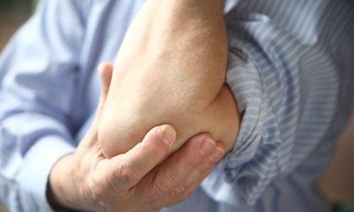 a kéz könyökízületei fájnak a kezelésről)
