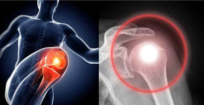 a térd nyálkahártya artrózisának kezelése