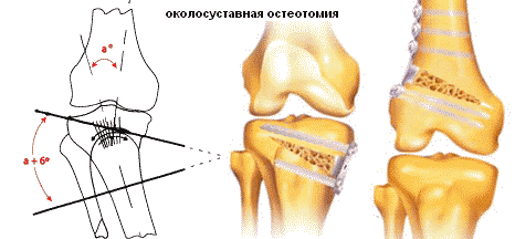 íngyulladás - Rehabilitáció