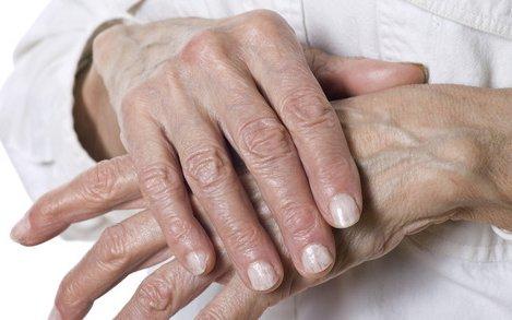 hogyan lehet enyhíteni az ujjgyulladást ízületi gyulladás esetén