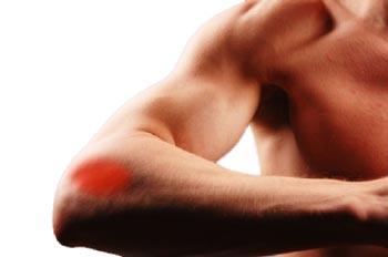 csukló epicondylitis kezelése
