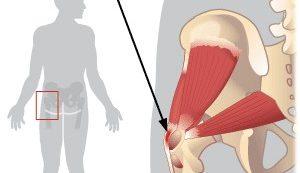 csípőízület trochanterikus bursitisz