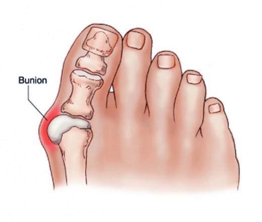fájdalom a bokán kívül)