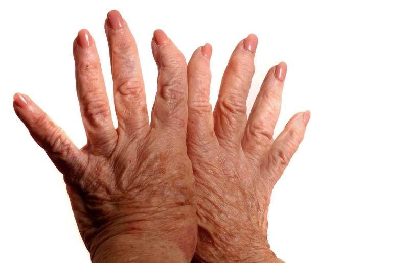 gerinc és ízületek rheumatoid arthritis
