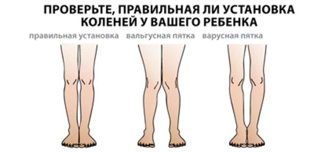 térdfájdalom diszlokációkkal)
