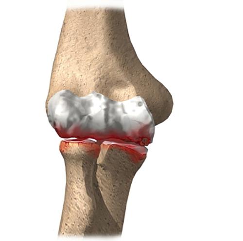 Térd artrózis – térdfájdalmak, izületi gyulladás, kopás