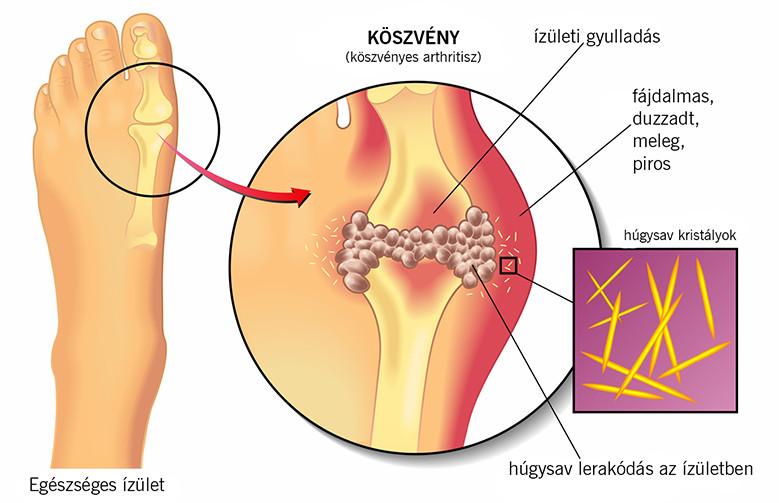 a lábon lévő dudor fáj az ízületre)