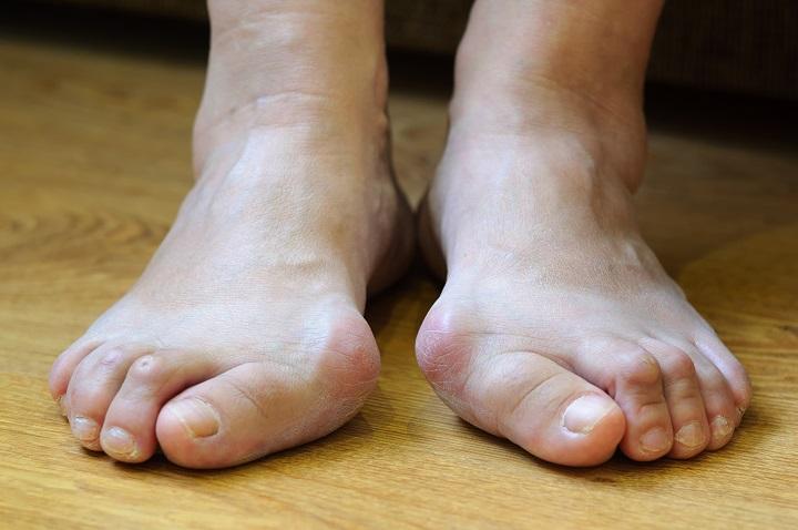 gyűrűs lábujj artritisz