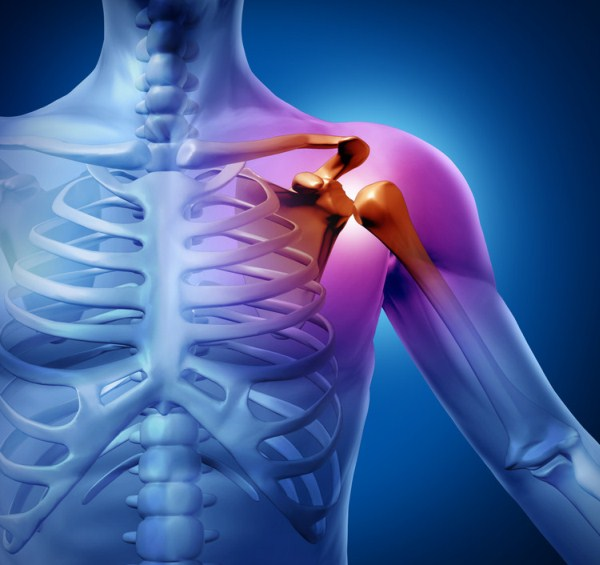 vállízület subacromialis artrózisa