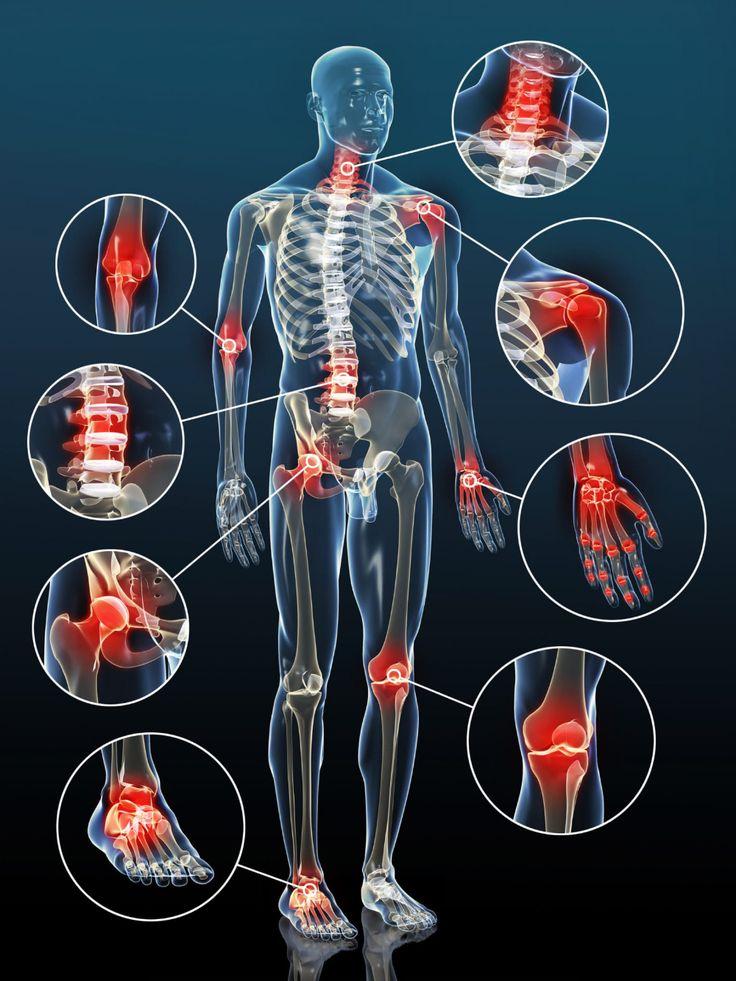 ízületi kezelés artrosis ayurveda