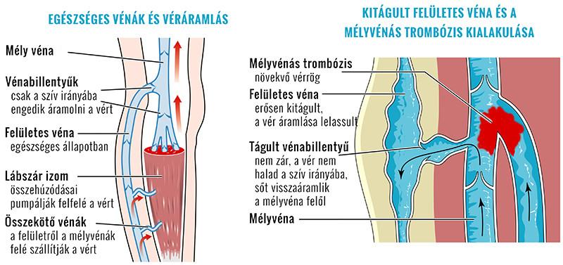 fájdalom a lábakban