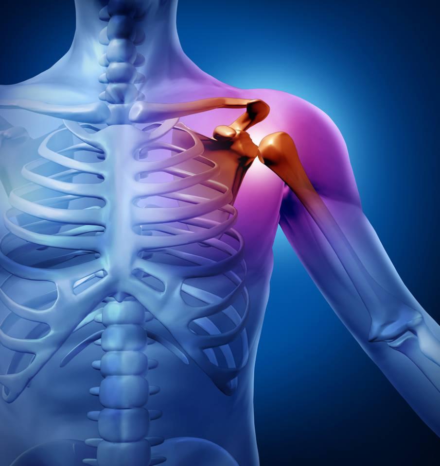 vállízületek fáj egy álom az ívek másodlagos deformáló artrózisa