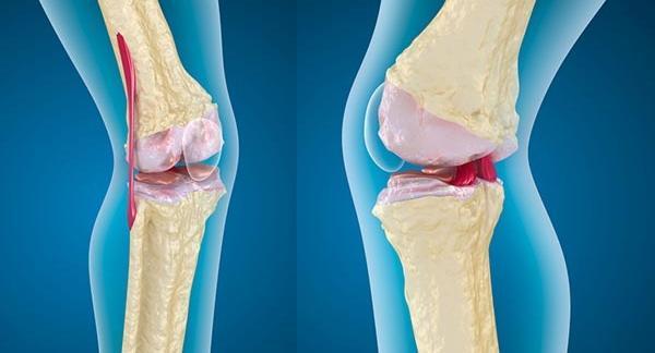 könyökízület meghajlik cédrus tinktúra ízületi fájdalmak kezelésére