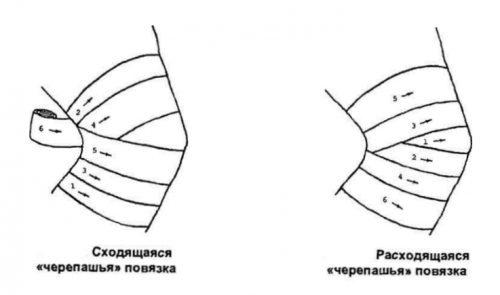 a könyökízület bursitis-kezelése diprospan-nal)