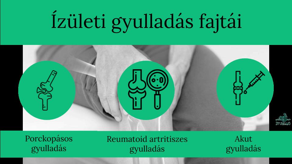 hogyan lehet azonosítani a vállízületi gyulladást
