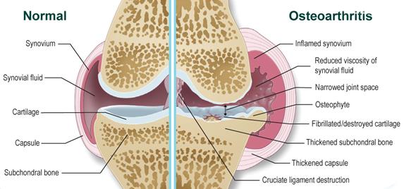 kezelje az ízületeket radonforrással kawasaki ízületi betegség