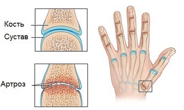 mit kell venni a kézízületek fájdalmától