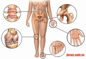 Vitaminok arthrosishoz: mit kell inni?