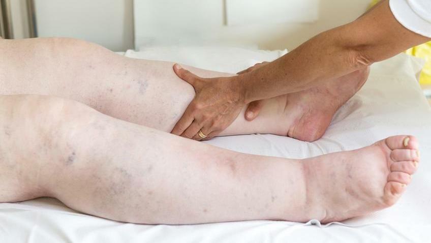 boka duzzanat és láb kezelés
