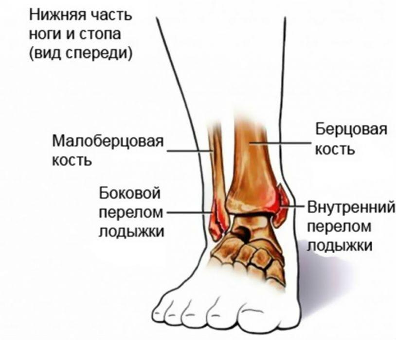mi a boka ligamentum-töréskezelése