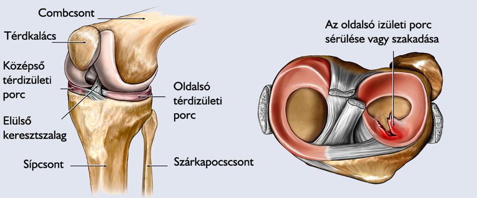 térdízület ízületi fájdalma