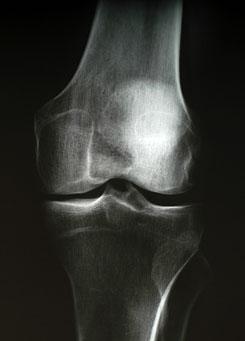 ízületi helyreállítás a röplabda sérülése után