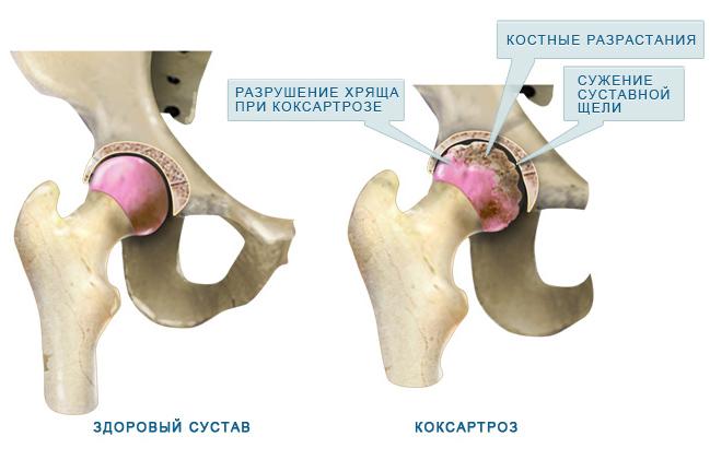 csípőízületek kezelése