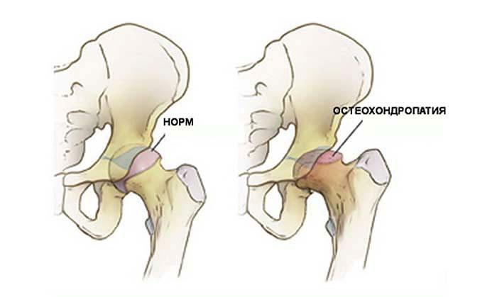 az interkostális ízületek artrózisa)