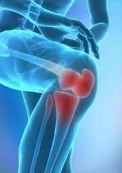kámfor olaj a térd artrózisához