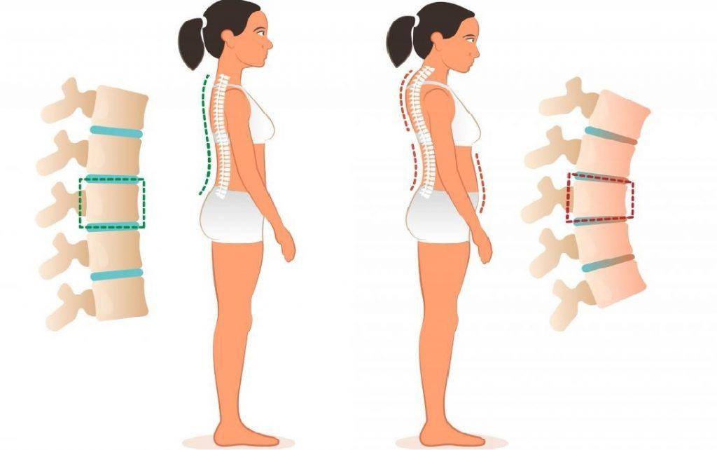 jó kenőcső a nyaki gerinc csontritkulásához