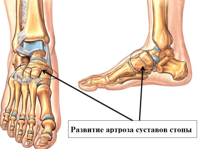 lábvénás ízületi kezelés