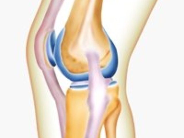 tanácsos az artrózis kezelés)