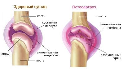 a térd artrózisának kezdeti megnyilvánulásai)