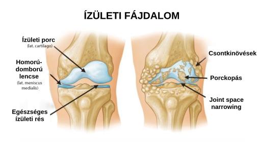 a lábak és a karok ízületei)