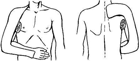 gyógyszerek a vállízület ligamentumainak törésére)
