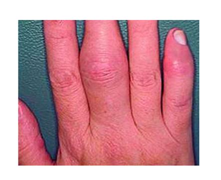 az ujjak ízületeinek ízületi gyulladás első jelei)