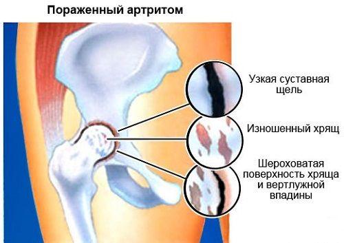 ízületi kezelés diprospan-nal)