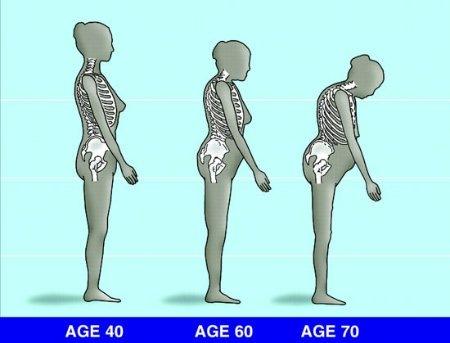 csontritkulás kezelése olcsó gyógyszerekkel
