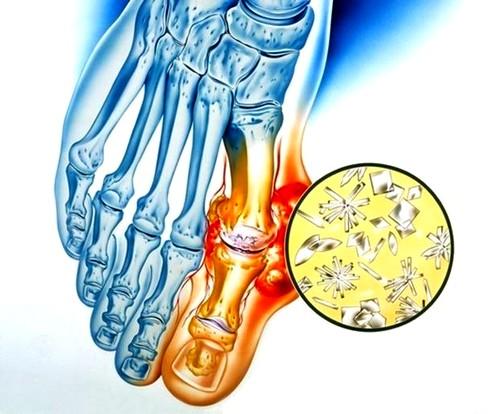 miért duzzadnak a lábak ízületei kenőcs az ízületek osteochondrosisában