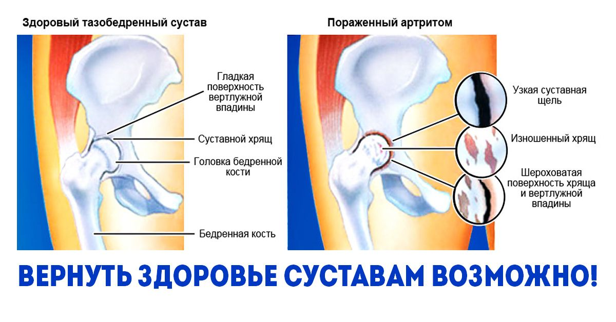 moszat gél ízületek minociklin ízületi fájdalom