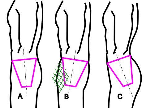 a vállízületek ízületi tünetei és kezelése melegítő kenőcsök a lábak ízületeihez ár