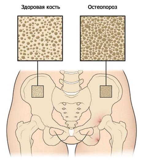 hány szakaszában van a csípőízület artrózisa közös javítási készítmények áttekintése