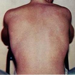 reiter-betegség együttes kezelése