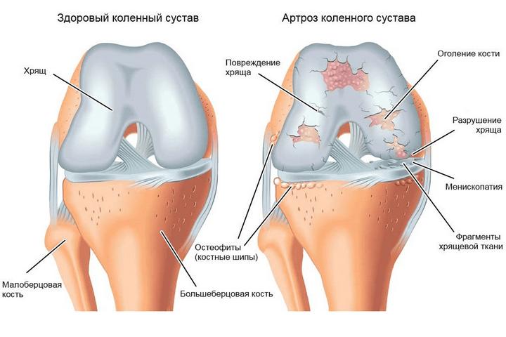 a térdízület folyadékának gyulladása)